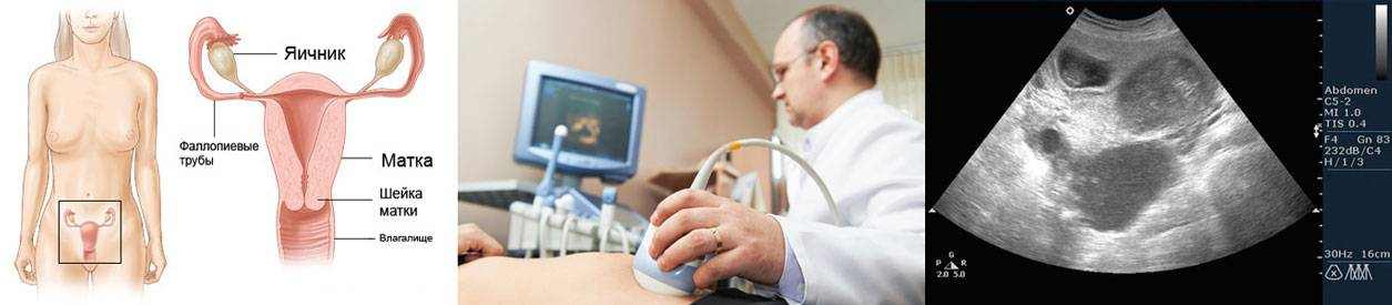 Как гинеколог определяет беременность на ранних сроках