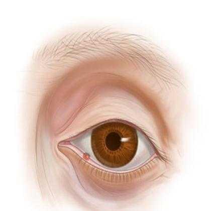 Ячмень на глазу при беременности: насколько это опасно? ячмень при беременности: «наплевать» или лечить?
