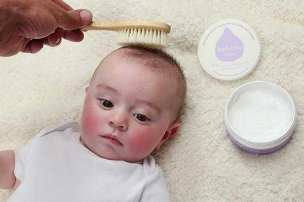 У ребенка плохо растут волосы: что делать