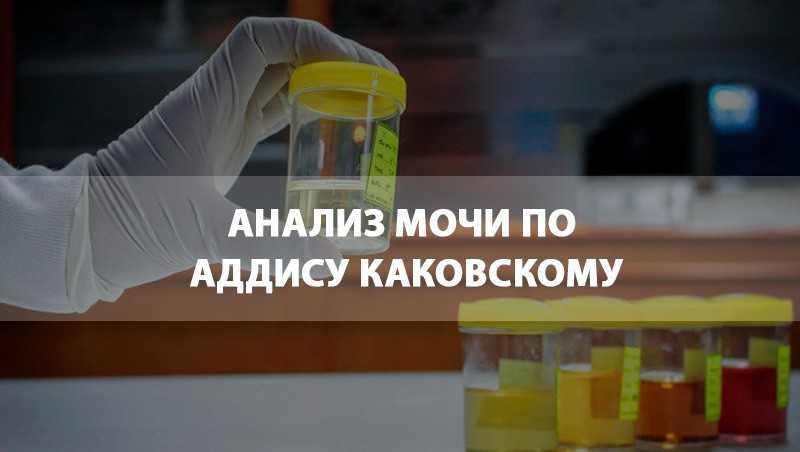 Анализ мочи по аддис-каковскому: подготовка, плюсы и минусы
