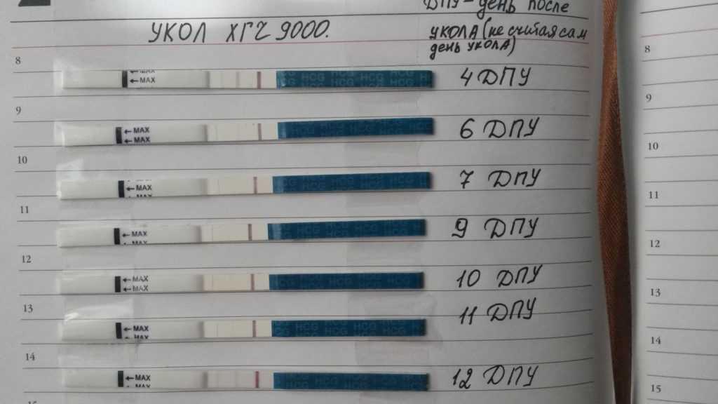 Гонадотропин хорионический (29 фото): инструкция на 1000 ед., укол хгч и применение рилизинг гормона