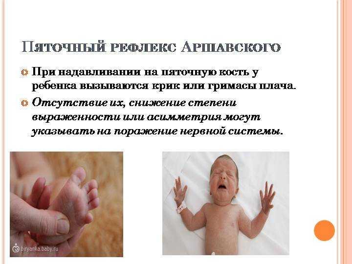 Шаговый рефлекс у новорожденного отсутствует — все о детях