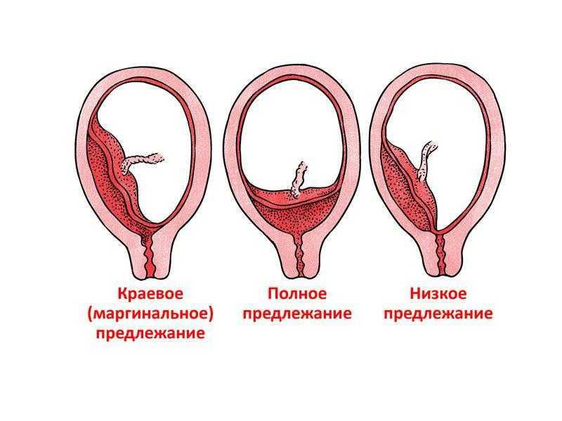 Краевое предлежание плаценты при беременности: что это такое, виды патологии, симптомы, чем опасно