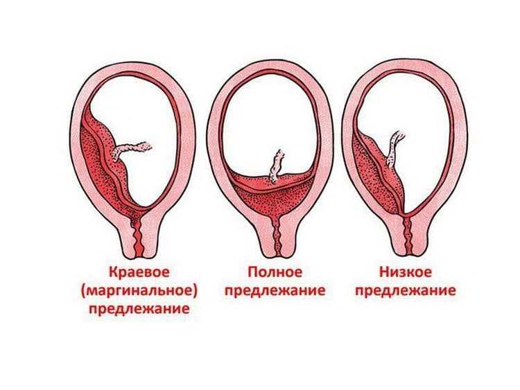 Низкое предлежание плода: низкое расположение плода при беременности, ребенок низко расположен в матке – чем грозит