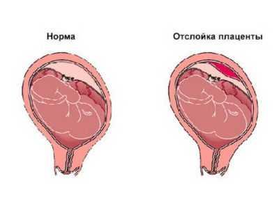 Краевое предлежание хориона: что это, положение плаценты по передней стенке матки, как влияет на плод и может ли перейти в другое положение