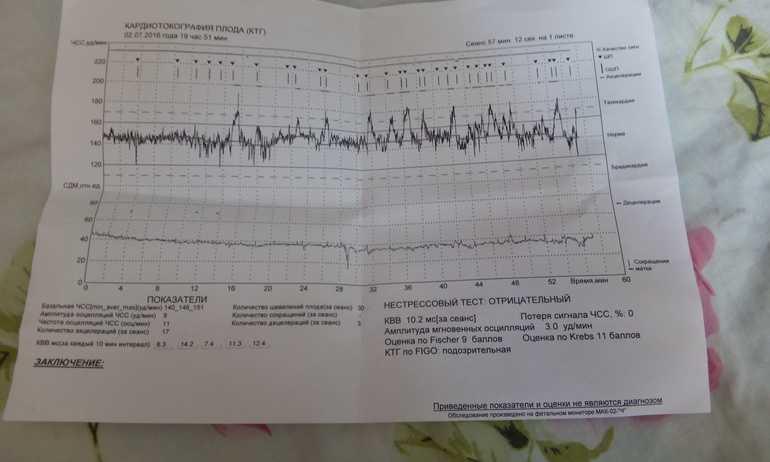 Что такое кардиотокография (ктг) при беременности, и как ее делают?