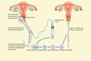 Эффективные способы улучшения качества яйцеклеток перед эко: питание и витамины