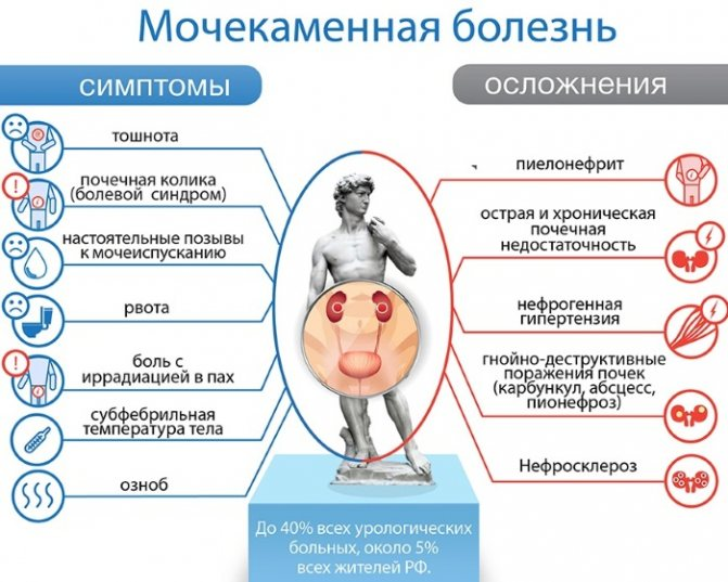 Почки: психосоматика болезней и образования камней