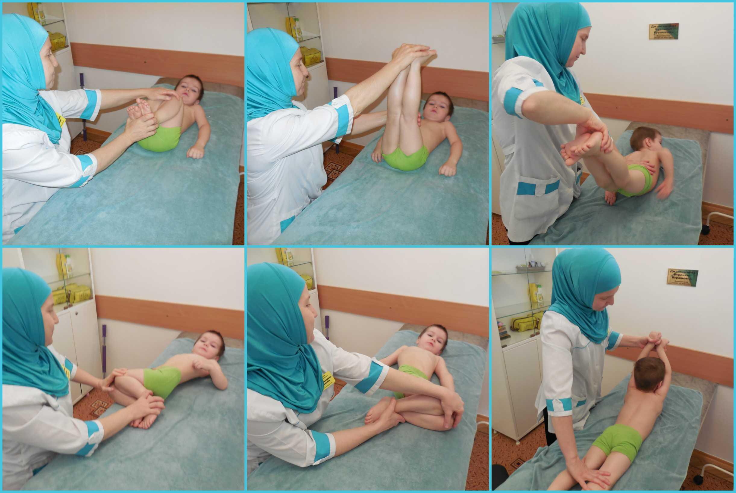 Гимнастика для грудничков при дисплазии тазобедренных суставов