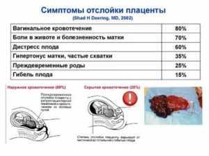 Отслойка плаценты на ранних и поздних сроках, отслойка нормально распложенной плаценты: симптомы, диагностика, лечение / mama66.ru