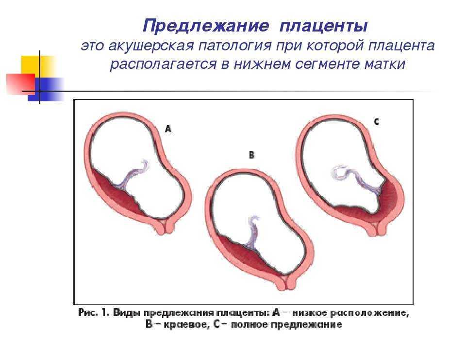 Низкая плацентация при беременности: причины, симптомы, прогноз родов
