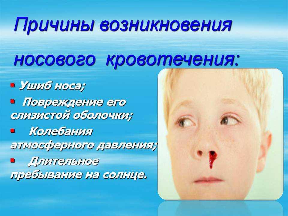 Носовое кровотечение у детей — патология, требующая серьёзного подхода