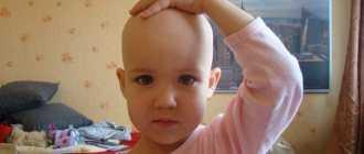 У ребенка плохо растут волосы на голове: что делать?
