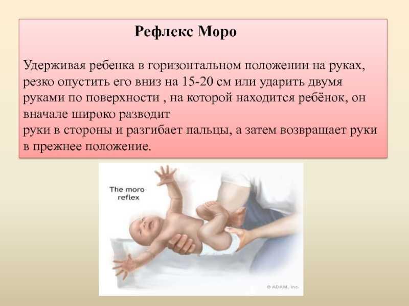 Рефлекс моро у новорожденных: что это
