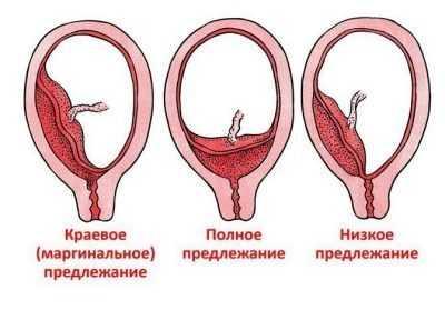 Краевое предлежание плаценты по задней стенке: что это такое, чем опасно, прогнозы