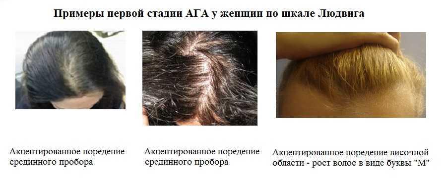 Подбираем оптимальные витамины для кормящих мам от выпадения волос: как не ошибиться?