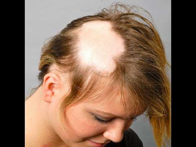 Что делать, если выпадают волосы после родов при грудном вскармливании?