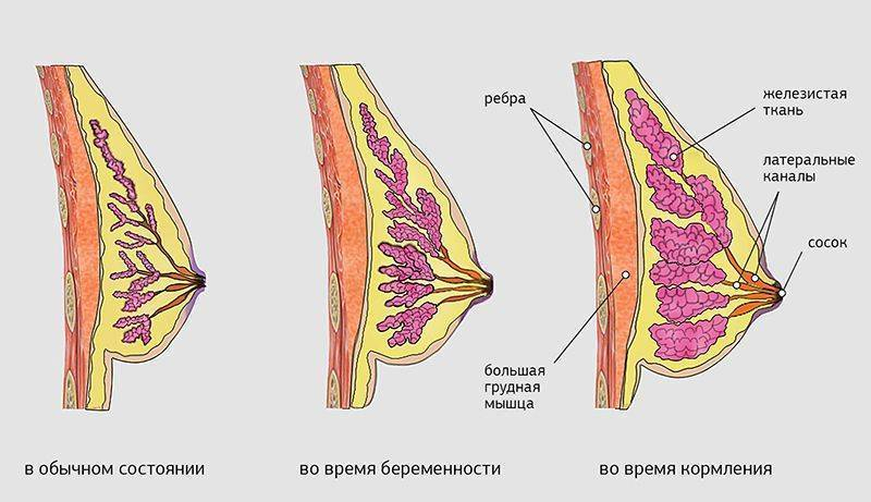 Через сколько после зачатия болит грудь. когда увеличивается грудь, как облегчить боль