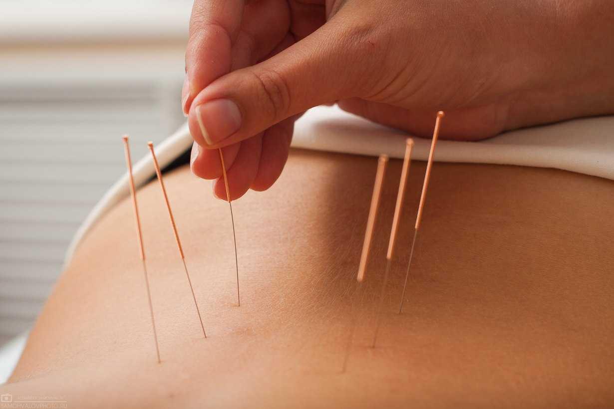 Лечение бесплодия у женщин: можно ли его победить с помощью физиотерапии в гинекологии, таблеток, хиджамы, остеопатии, тампонов, иглоукалывания и других методов
