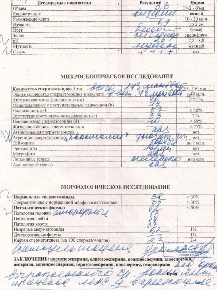 Патология головки сперматозоида в спермограмме: норма и отклонения | spacream.ru