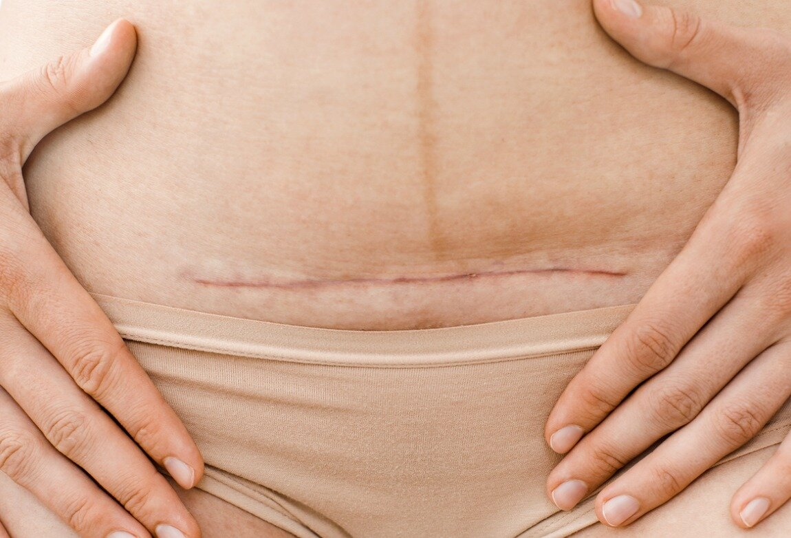 Болит живот через 3 месяца после кесарева. болит живот после кесарева сечения, что делать
