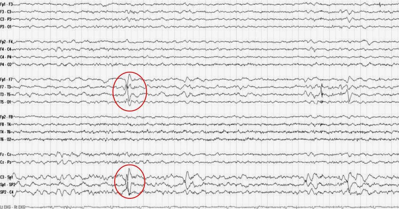 Электроэнцефалография (ээг) головного мозга ребенку