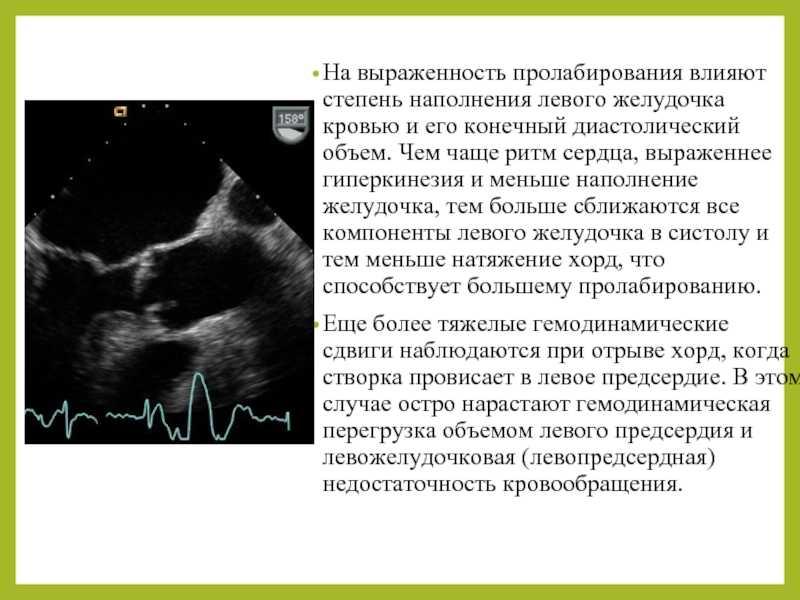 Гиперэхогенный фокус в сердце. гиперэхогенный фокус в левом желудочке сердца плода: диагностика, причины