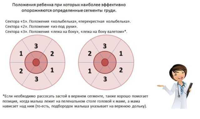 Лактостаз: схема действий
