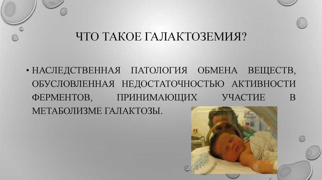 Галактоземия у новорожденных детей: симптомы, анализы, лечение
