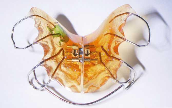Пластины на зубы детям