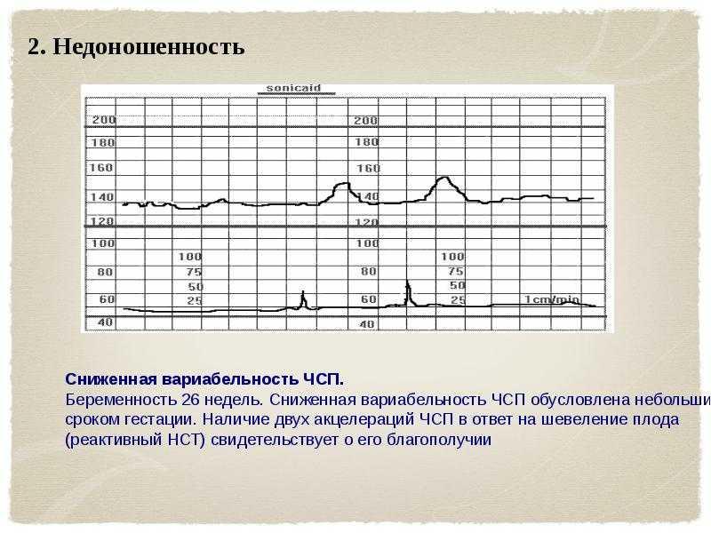 Норма ктг при беременности (23 фото): баллы на 32, 34, 36, 38, 39 неделях, вариабельность плода и индекс реактивности