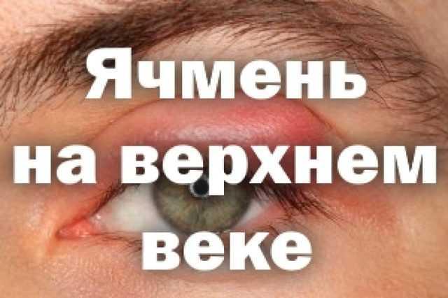 Психосоматика ячменя: психологические причины появления на правом или левом глазе у детей и взрослых