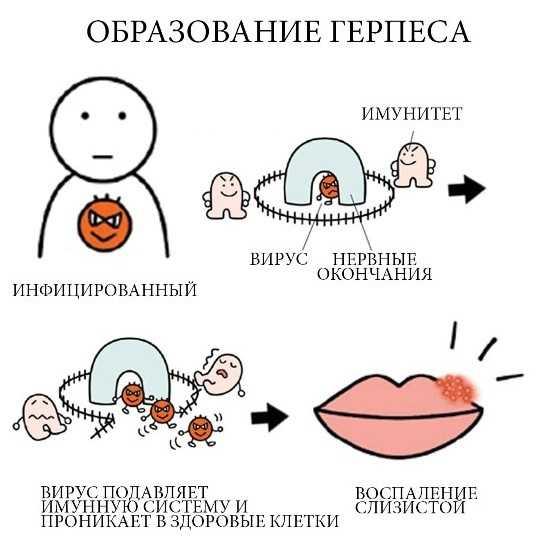 Герпес на губах при беременности во втором триместре — опасен ли, чем лечить