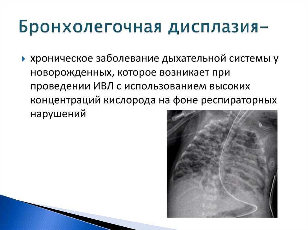Бронхолегочная дисплазия