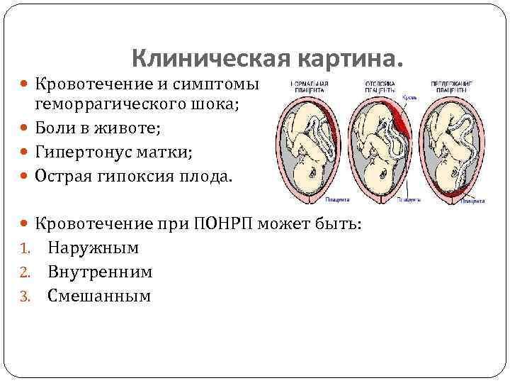 Отслойка хориона... - счастливая беременность - страна мам