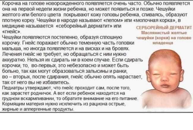 Корочки на голове у грудничка   уроки для мам