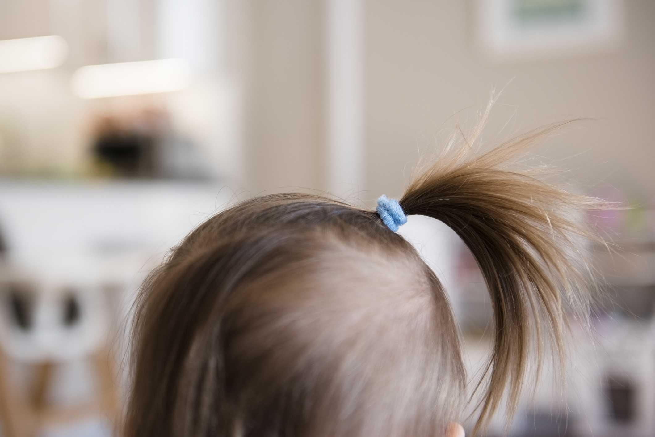 Как должны расти волосы у грудничка?