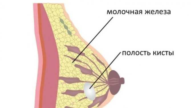 Болит грудь во время овуляции - причины, лечение