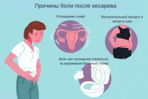 Сколько сокращается матка после родов: как ускорить если плохо сокращается
