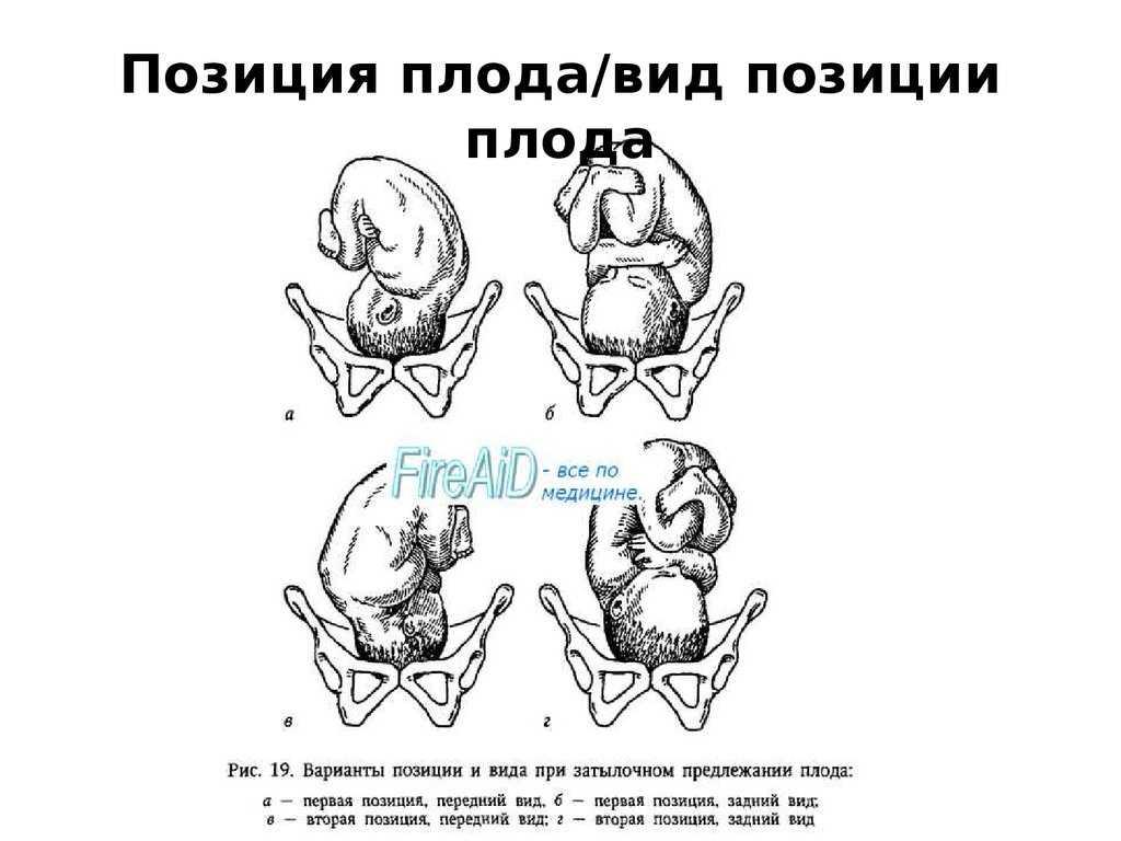 Предлежание плода (27 фото): как определить положение самостоятельно – нормальное и неправильное – виды, косое расположение матке, полное, заднее и неустойчивое – разница