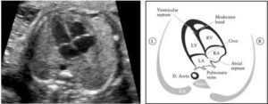 Гиперэхогенный фокус в левом желудочке сердца плода: причины и действия