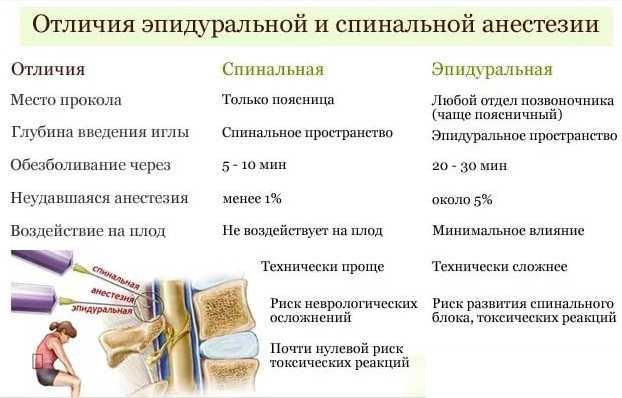 Анестезия при родах: эпидуральная, спинальная, общий наркоз, отличия / mama66.ru