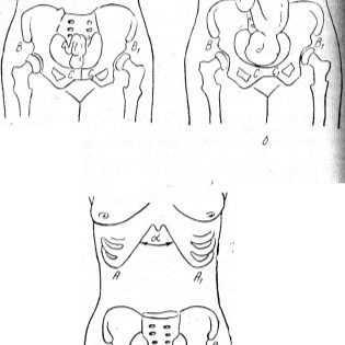 Болят кости таза при беременности, причины болей в тазовых костях у беременных