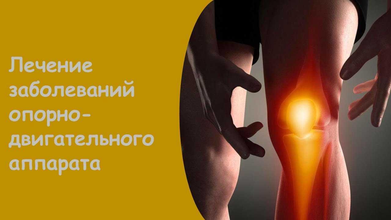 Боль в коленном суставе: причины, лечение, почему болят колени, что делать, как и чем лечить