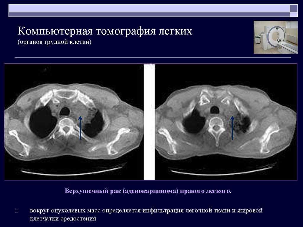 Кт ребенку: виды, компьютерная томография органов грудной клетки и легких, можно ли делать под наркозом, вред для детей