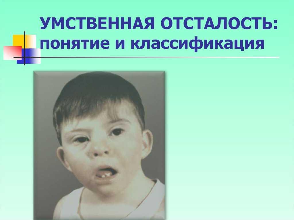 Умственная отсталость у детей: симптомы олигофрении, причины и лечение