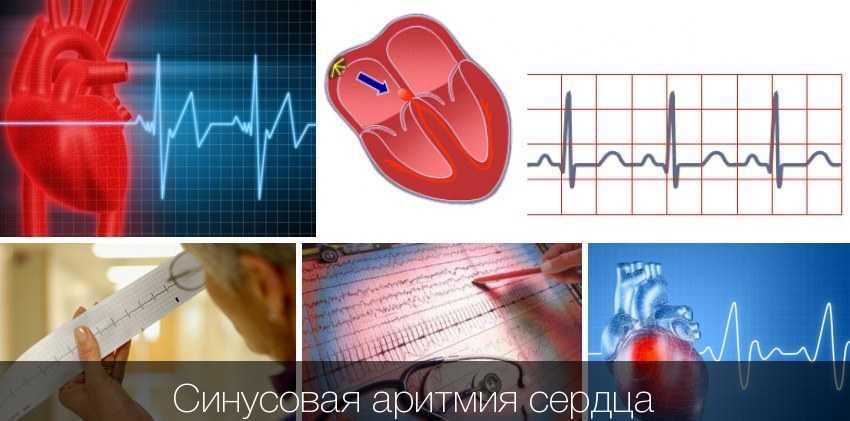Симптомы тахикардии: причины, симптомы, осложнения, лечение   всердце.ком
