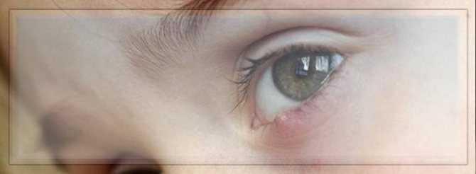 Лууле виилма ячмень глаза