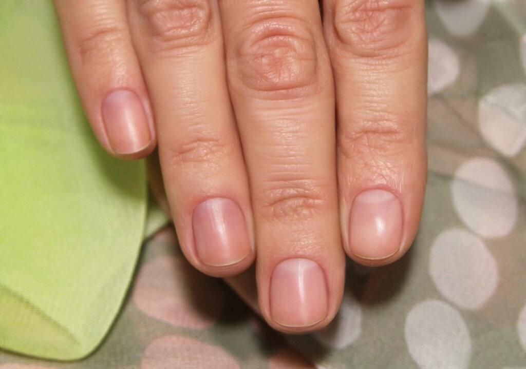 Можно ли беременной… красить ногти? можно ли во время беременности красить ногти
