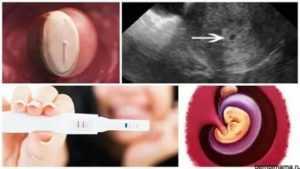 Может ли повышенная температура быть ранним признаком беременности